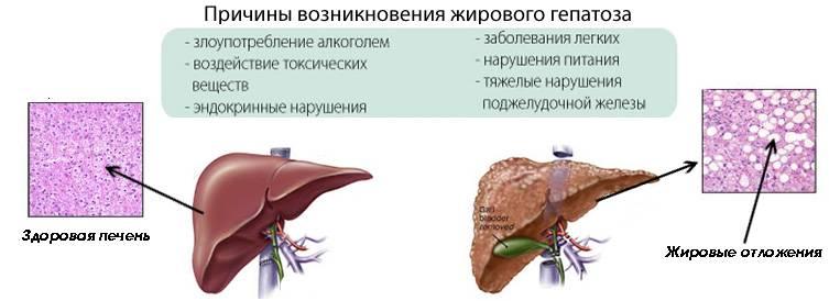 причины жирового гепатоза